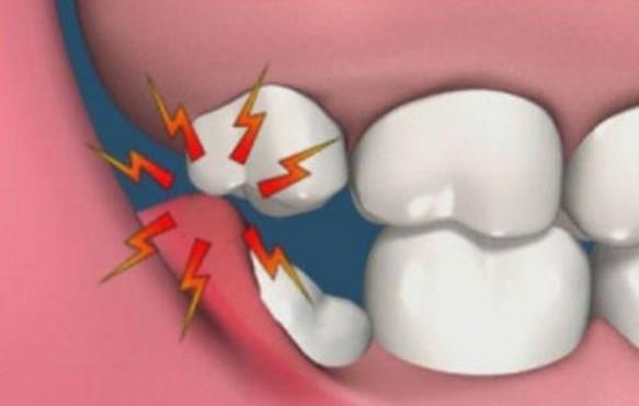 Phương án xử lý khi bị sâu răng ann toàn nhất