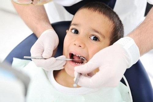 Sâu răng ở trẻ nhỏ