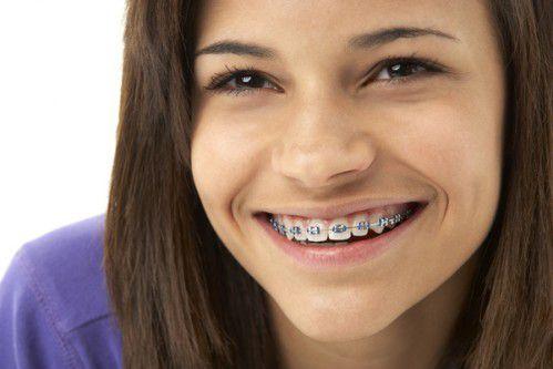 Niềng răng khểnh bao lâu do tuổi tác, phương pháp niềng răng chi phối