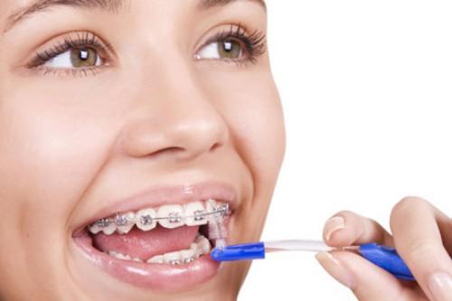 Niềng răng- những điều bạn cần biết
