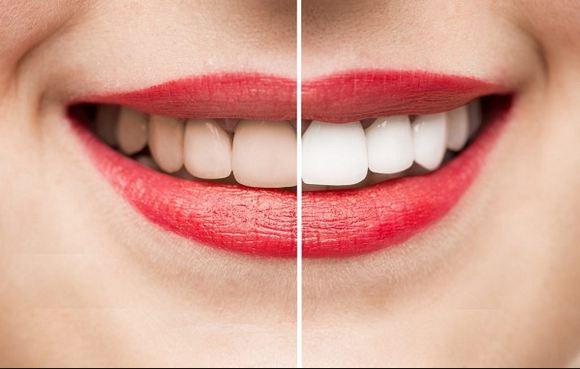 Nên tẩy trắng răng tại bệnh viện thẩm mỹ uy tín
