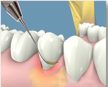 Cao răng là tác nhân gây mất thẩm mỹ