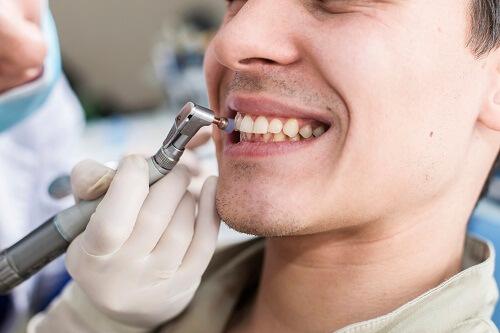Cao răng nhiều có thể gây ra các bệnh về răng miệng