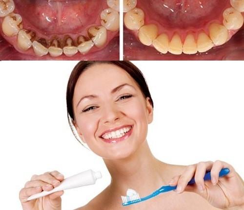 Thói quen chăm sóc răng miệng khoa học sẽ giúp bảo vệ răng miệng tốt hơn