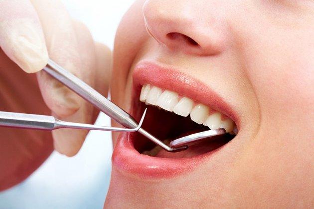 Lấy cao răng có hại không?