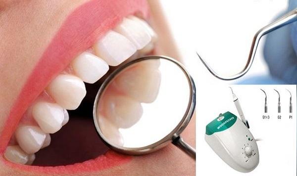 Cạo vôi răng có được bảo hiểm y tế không?