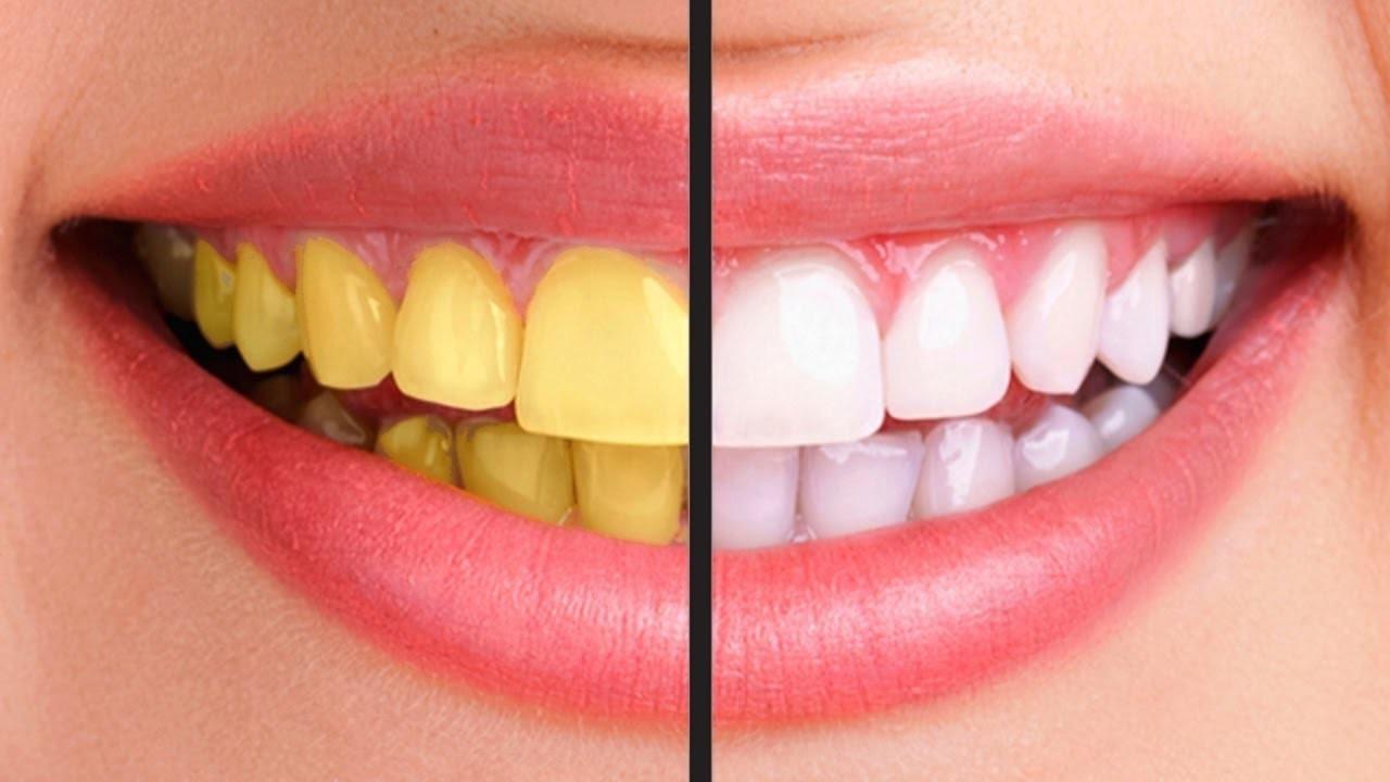 Răng vàng là biểu hiện của bệnh viêm tủy, sâu răng...