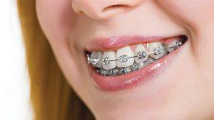 răng số 4 hàm trên, răng số 4 hàm dưới